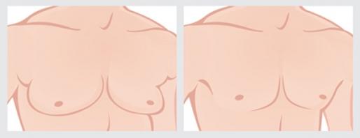 乳房 女性 化